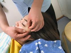 美容鍼灸施術風景